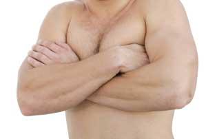 Гинекомастия е растеж на млечни жлези при мъже.