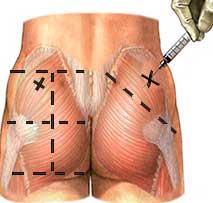 Поставяне на мускулна инжекция чрез мускулно инжектиране на анаболи в задните части / задника / дупето.