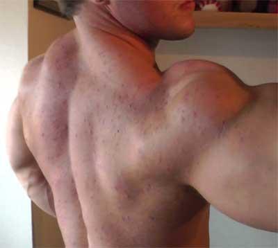Поява на акне, причинено от употреба на анаболни стероиди, като страничен ефект.