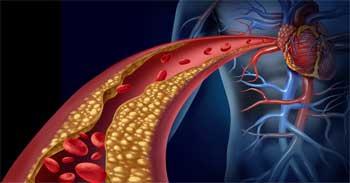 Повишени нива на лошия холестерол от употреба на анаболни стероиди.
